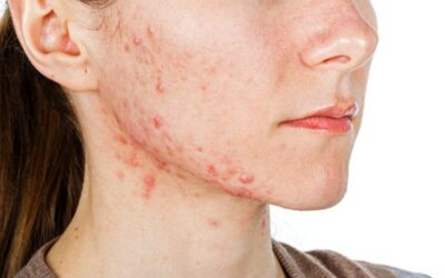 causes acne