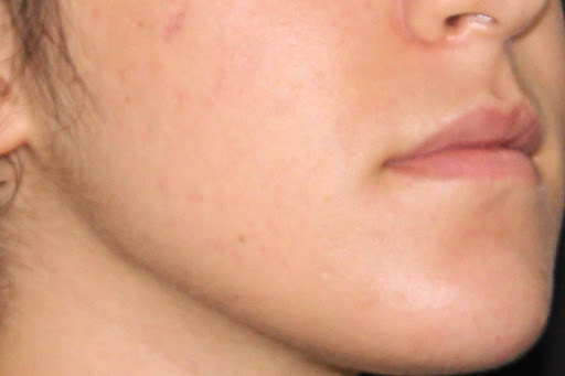 comprendre acne