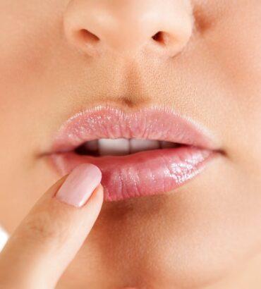Comment traiter naturellement un herpès labial ?
